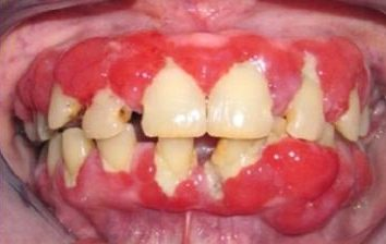 Dlaczego dziąsła odbiega od zęba i jak zwrócić go do miejsca