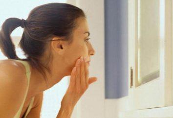 Acne sul viso durante la gravidanza: cause e possibili trattamenti. Posso spremere i brufoli sul viso?