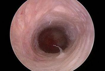canal cervical – quel est-il et quelles sont ses fonctions?