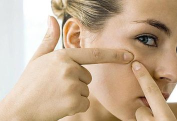Da allora in poi il volto di acne? Cause e trattamento