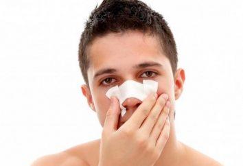 fracturas nasales: sus síntomas y tratamiento