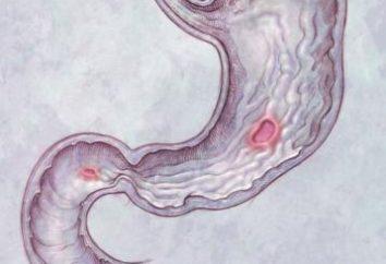 Objawy choroby wrzodowej żołądka i jelit. Objawy choroby wrzodowej dwunastnicy