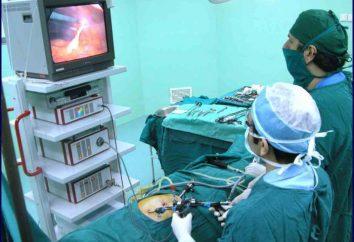 Hysterektomie laparoskopische Methode: postoperative Phase, die Folgen Bewertungen. Die Entfernung der Myome laparoskopisch: Bewertungen
