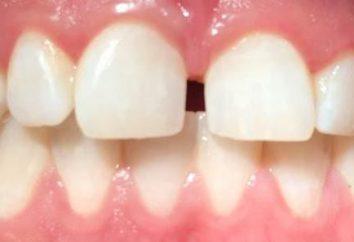 Prognatyzm – deformacja szczęki: Diagnostyka i leczenie
