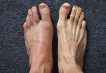 Die Behandlung von Gicht in den Füßen: Grundlagen