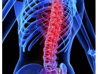 lesões da coluna: classificação, sintomas, tratamento