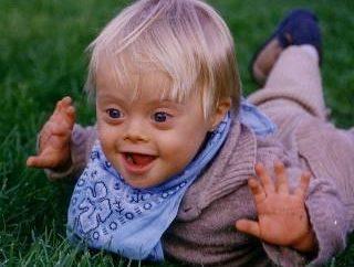 Por que uma criança nasce com síndrome de Down – uma pergunta que não foi respondida