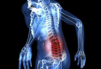 Zapalenie rdzenia kręgowego lędźwiowego: leczenie lekami i metodami ludowymi