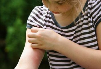 Prävention und Behandlung von Mückenstichen bei Kindern