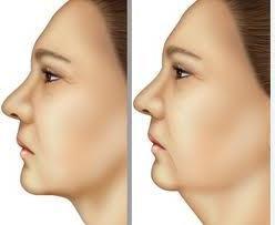 I metodi per rimuovere il secondo mento