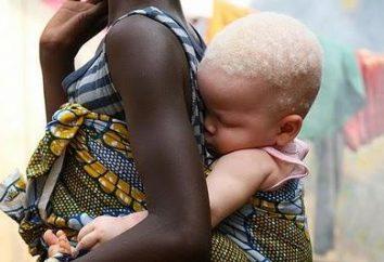 Perché Tanzania Albino nigger non sopravvivono fino all'età adulta?