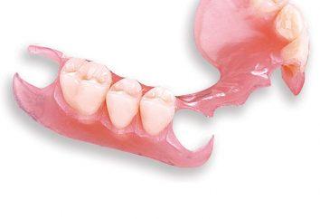 Dentiere. Che cosa è meglio scegliere?