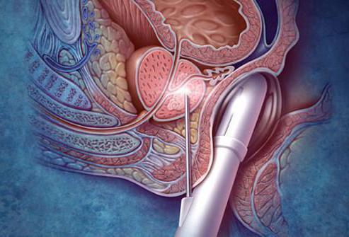 usuniecie prostaty
