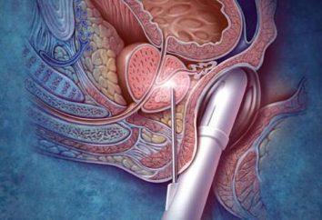 Rimozione della prostata: conseguenze della chirurgia, recensioni