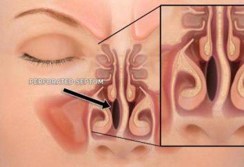 Perforacja przegrody nosowej: przyczyny, objawy, leczenie i efekty