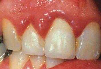 La gingivite est le bébé: causes, traitement, médicaments