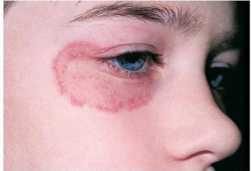 Fungo sul viso: tipi, cause e trattamento