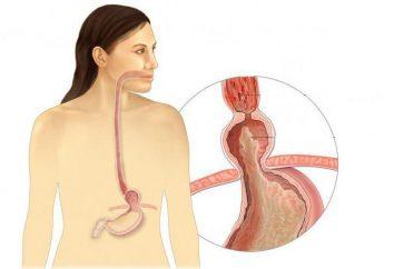 Przepuklina rozworu przełykowego: objawy, leczenie