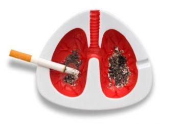 Rak płuc: pierwsze objawy. Jak nie przegapić?