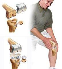 Ból w kolanach, gdy w kucki i na stojąco. Leczenie środków ludowej