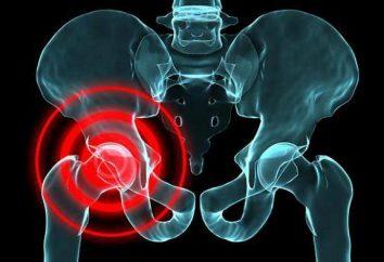 Esercizi di coxartrosi dell'anca