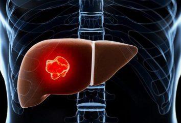 adenoma hepático: causas, sintomas e características do tratamento