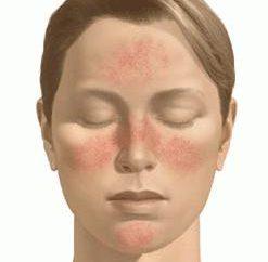 Comment supprimer des rougeurs sur le visage