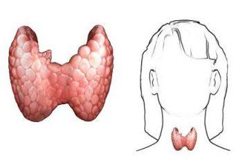 El tratamiento del cáncer de la glándula tiroides en Israel