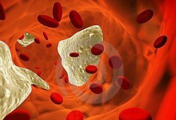 Aterosclerosi – è necessaria una dieta