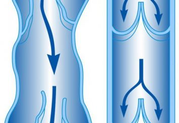 varizes de pelve pequena: sintomas, causas e tratamentos