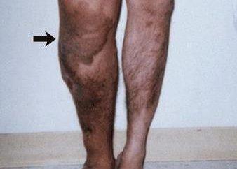 Qual è la sindrome di Klippel-Trenaunay-Weber?