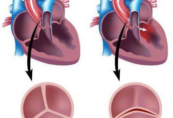 La válvula aórtica es bicúspide: causas, los síntomas, el tratamiento