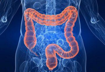 intestin Coloscopie virtuelle: avis et description de la procédure