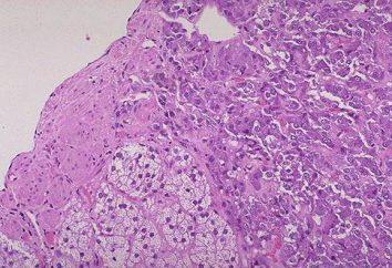 Pheochromocytoma – co to jest? Pheochromocytoma: objawy, diagnostyka, leczenie, zdjęcia