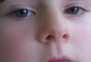 El impétigo en los niños. Síntomas y tratamiento