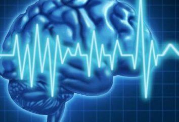 sindrome di Lennox-Gastaut (epilessia)