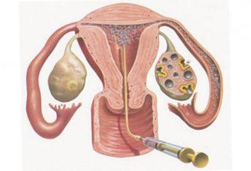 Inseminacja: kto to dostał po raz pierwszy? Sztuczna inseminacja – wspomagana technologia reprodukcyjna