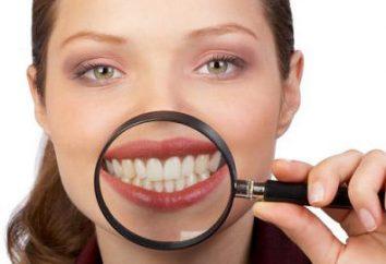 Quelle est la dent augmentation? Capacité Méthodes dents