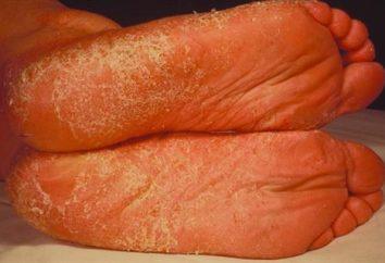 Les maladies fongiques: en particulier la prophylaxie et le traitement de la
