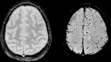 Diffuse axonale Hirnschäden: Symptome, Zeichen und Diagnostik