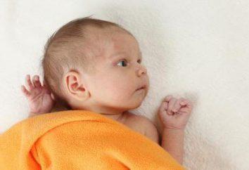 Kiedy zarośnięte temechko noworodka?