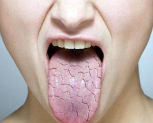 W godzinach porannych, suchość w jamie ustnej: przyczyny, skutki i leczenie