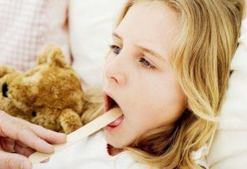 amigdalitis purulenta en un tratamiento de niños y autorizada opinión del Dr.