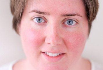 Zaczerwienienie skóry: przyczyny i jak ją usunąć