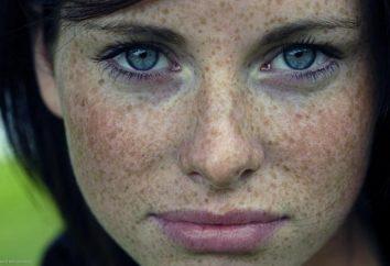 Comment enlever les taches sombres sur le visage des remèdes populaires