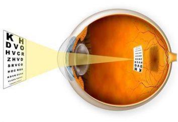 Miopia dell'occhio: sintomi, cause, diagnosi e trattamento