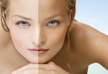Jak wybielić sobie prawo skóry?