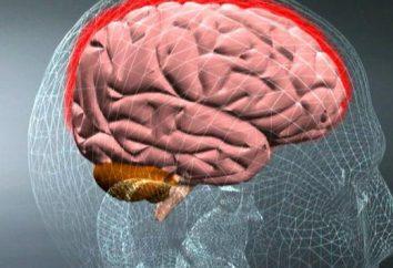 Causas y síntomas de la meningitis serosa