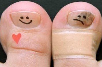 Niefortunne grzyb na paznokciach palców: leczenie środków ludowej
