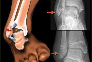 Para recuperarse de una fractura de tobillo en el hogar